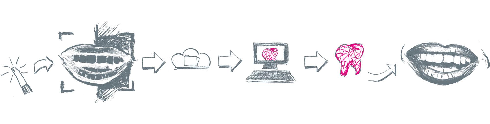 Intraoralscanner Workflow Kreidezeichnung